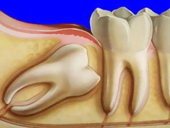 Terceiros molares